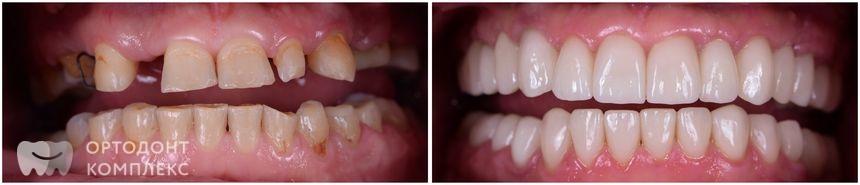 До и после установки имплантов зубов