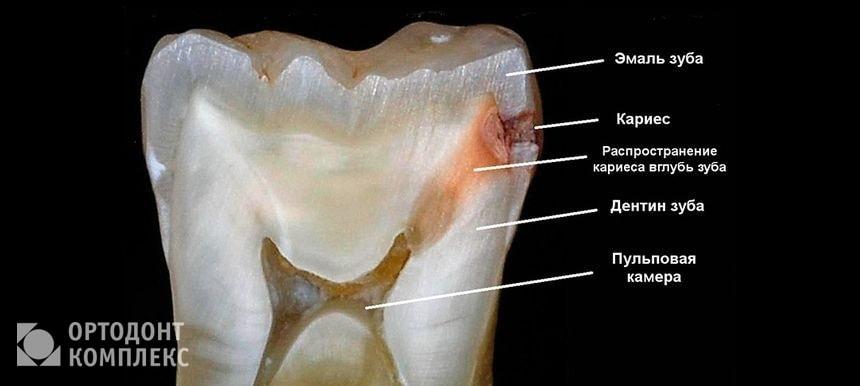 Как выглядит кариес зуба