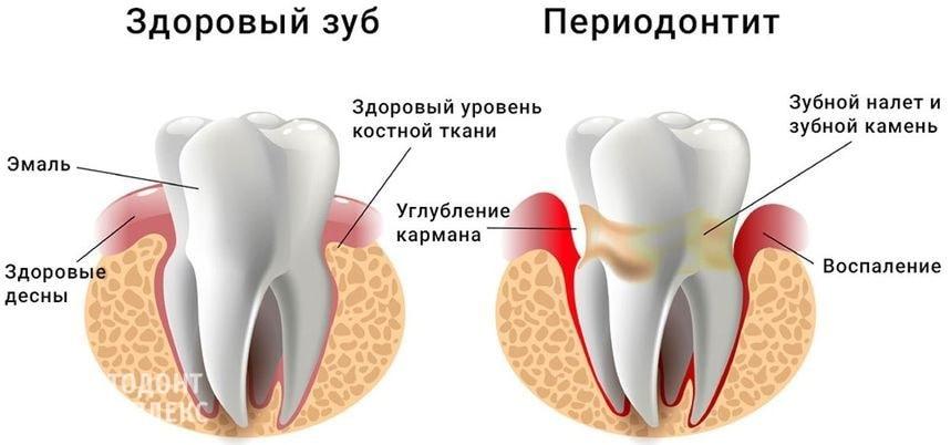 Здоровый зуб и зуб с периодонитом