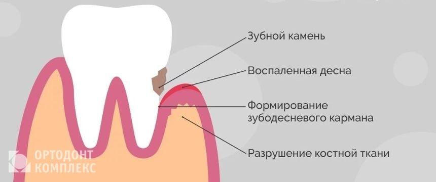 Влияние зубного камня на состояние зуба