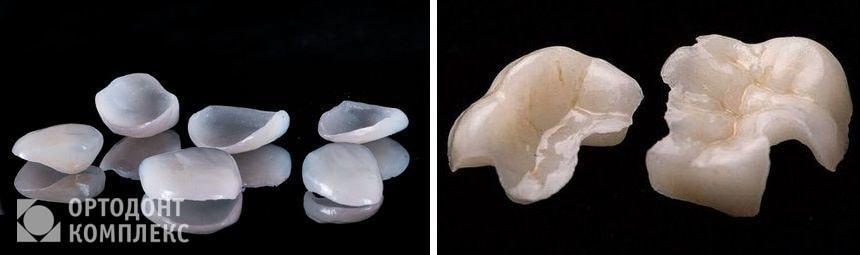 Виниры и вкладки на зубы