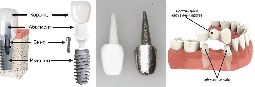 Установка протеза на абатмент, культевую вкладку и обточенный зуб пациента