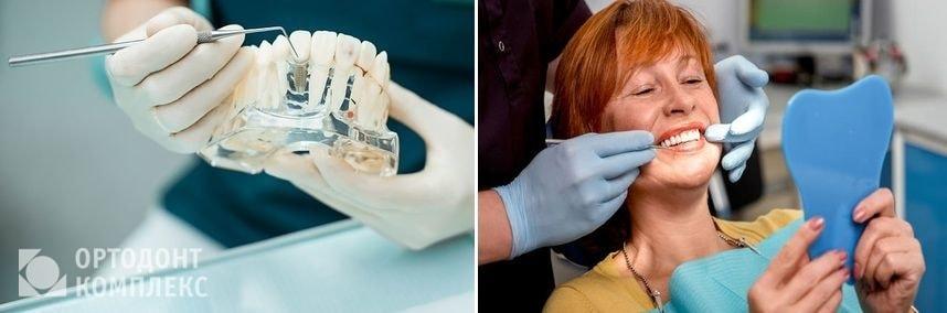 Изготовление протезов, их примерка и фиксация