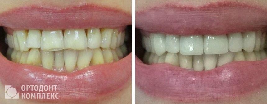 Протезирование при повышенной стираемости зубов