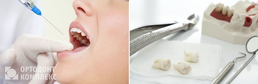 Удаление зуба с обезболиванием