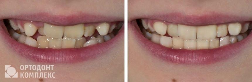 До и после ношения кап 3D Smile