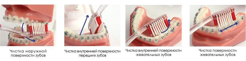 Правила чистки зубов