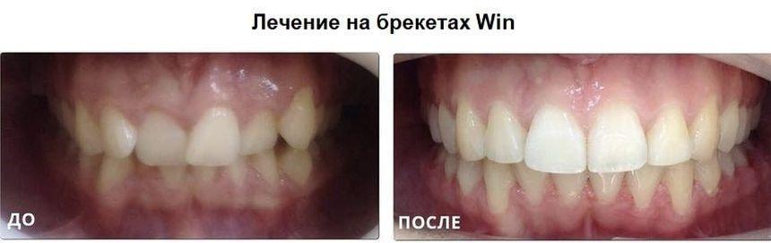 Лечение на брекетах Win: фото