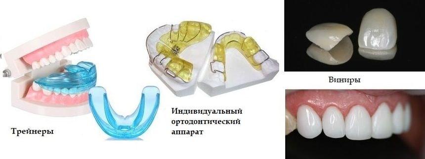 Аппараты для исправления прикуса без брекетов