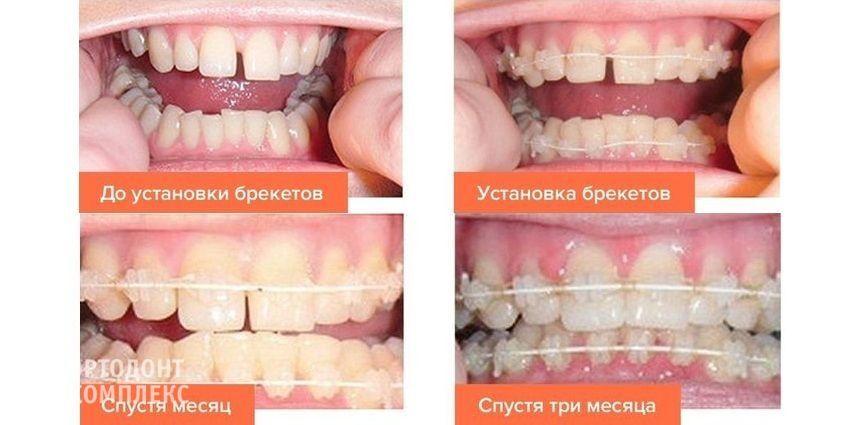 Результат лечения на керамических брекетах