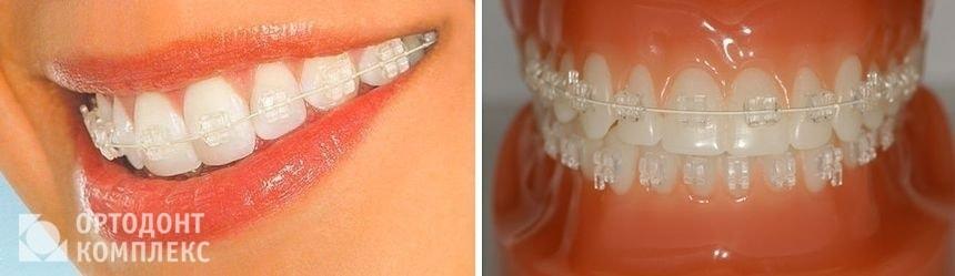 Сапфировые брекеты на зубах