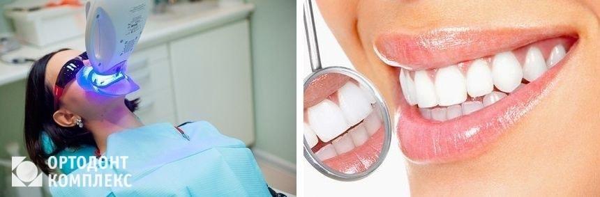 Результат фотоотбеливания зубов в клинике