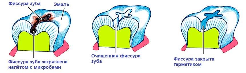 Этапы герметизации фиссур