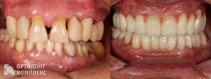 До и после установки имплантов Анкилоз