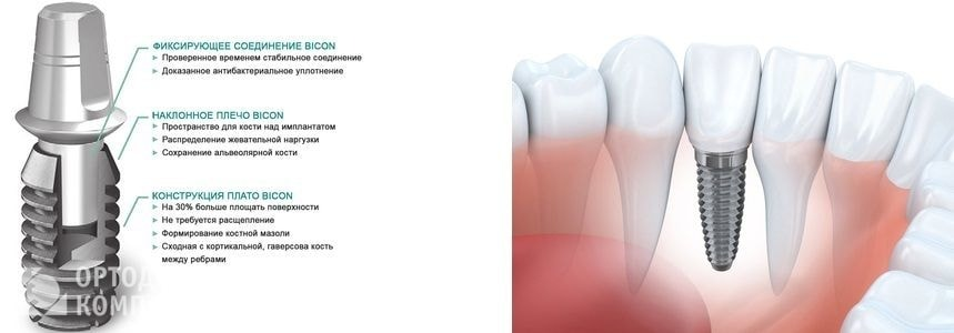 Импланты Байкон (Bicon)
