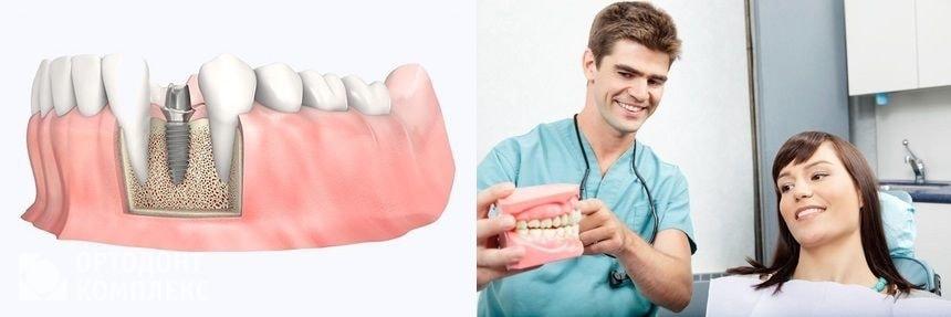 Зубные импланты Дентиум