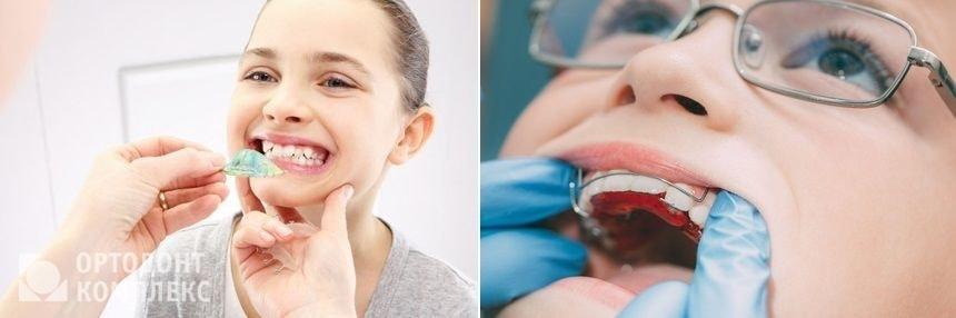Установка ортодонтической пластины ребенку для исправления прикуса