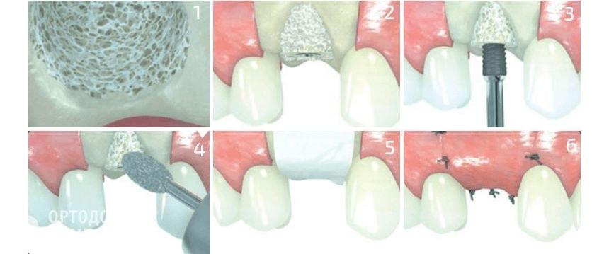 Операция костной пластики по этапам