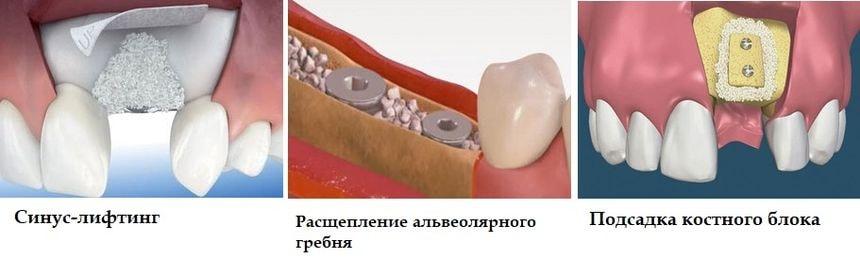 Основные методов наращивания костной ткани
