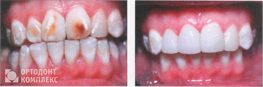 Лечение флюороза: фото до и после