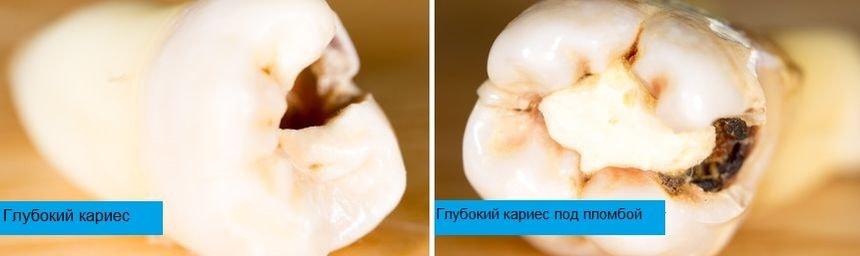 Глубокий кариес дентина