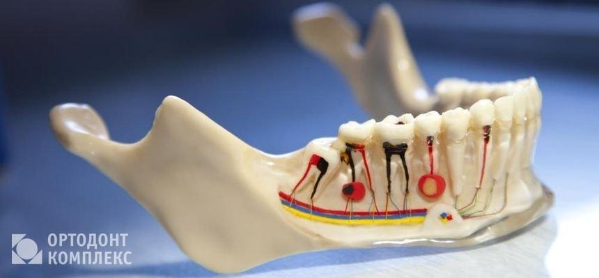 Промбирование зубных каналов