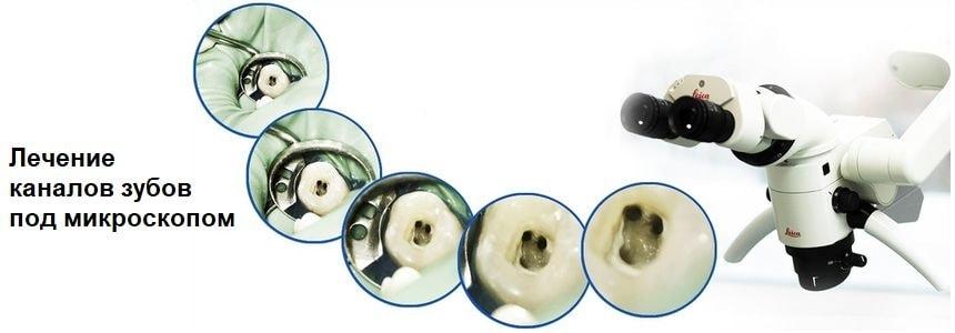 Обработка каналов зуба под микроскопом