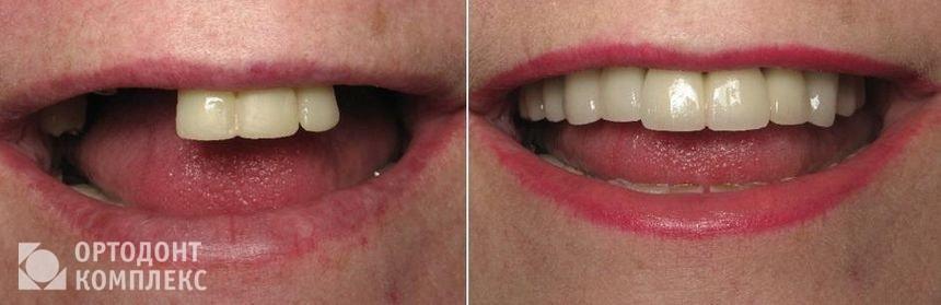 Нейлоновые протезы во рту