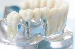Несъемные протезы для зубов