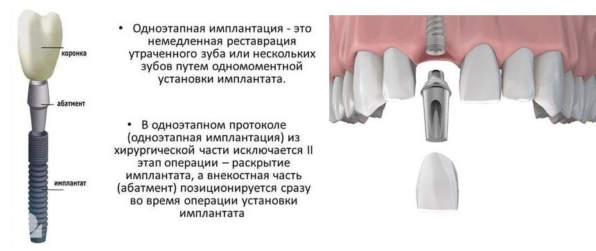 Особенности одноэтапной имплантации