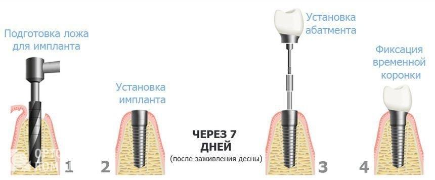 Последовательность имплантации зубов в один этап