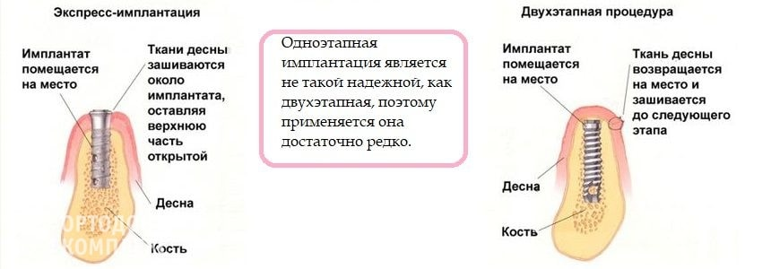 Особенности одноэтапной и двухэтапной имплантации