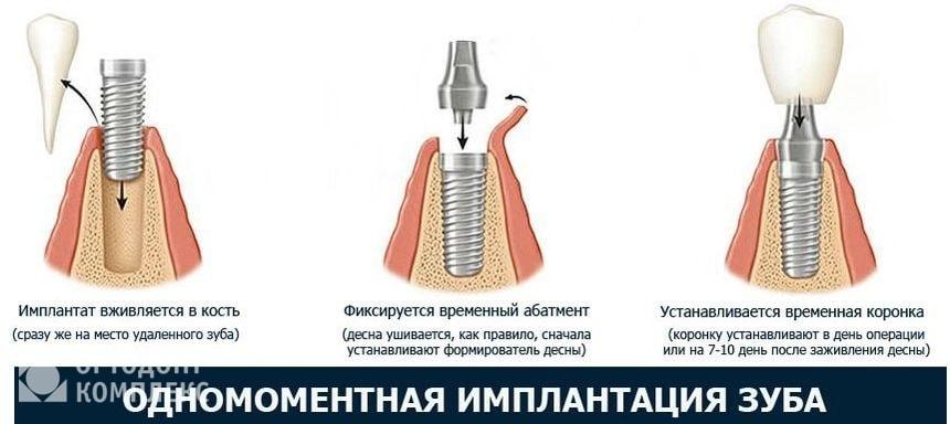 Последовательность одномоментной имплантации