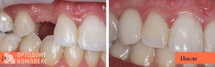 До и после установки имплантатов