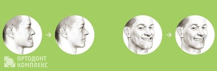 Остеотомия верхней челюсти: до и после