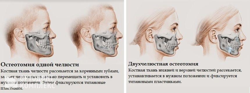 Остеотомия одной челюсти и двухчелюстная остеотомия