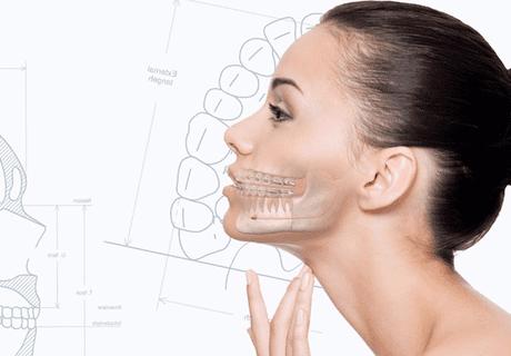 Ортогнатическая хирургия