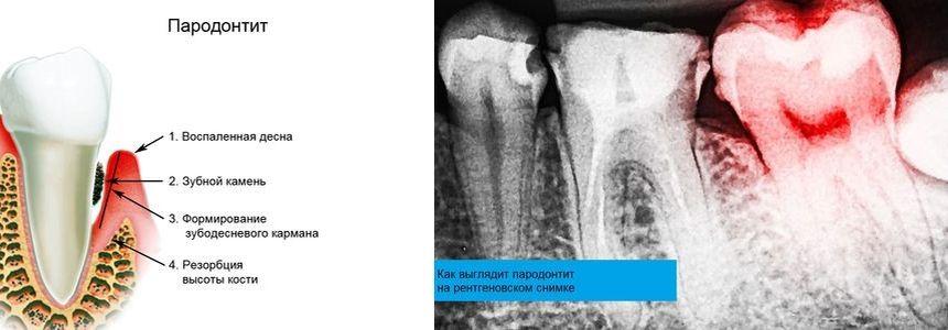 Как выглядит пародонтит на рентгеновском снимке