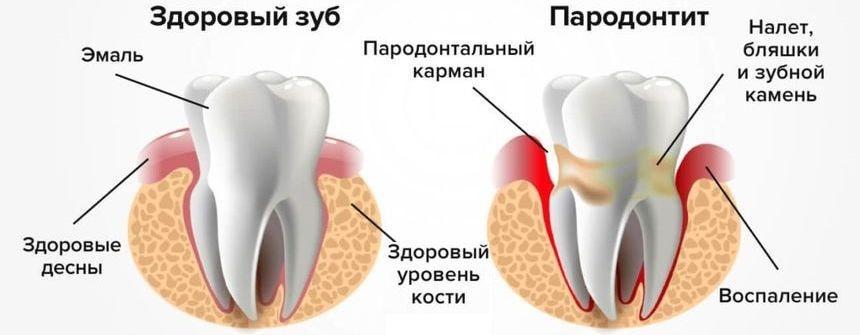 Отличие здорового зуба и зуба с пародонтитом