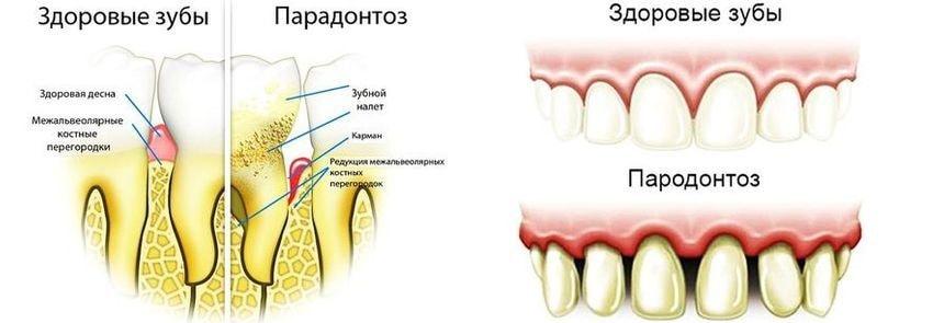 Сравнение здорового зуба и зуба с пародонтозом