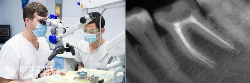 Перелечивание каналов зубов под микроскопом