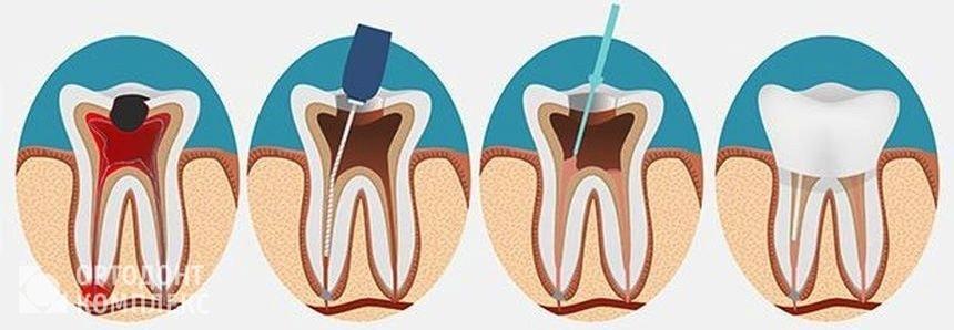 Этапы перелечивания каналов зубов