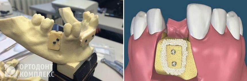 Остеопластика - операция по наращиванию костной ткани зуба