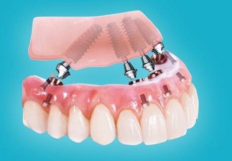 Все на четырех (all-on-4) имплантация зубов