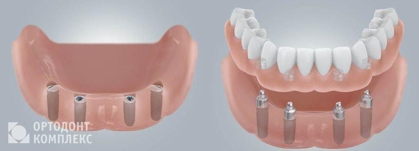 Съёмный протез на 4 имплантах с шаровидными аттачменами на нижней челюсти