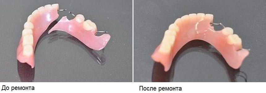 До и после ремонта протезов