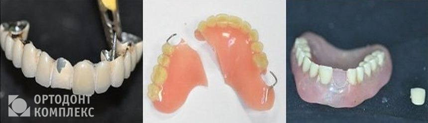 Виды поломок зубных протезов