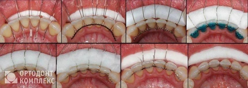 Установка проволочных ретейнеров на зубы