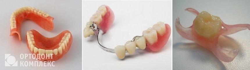 Виды съемных протезов для зубов