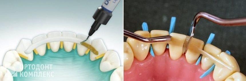 Шинирование зубов нижней челюсти